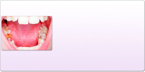 Caries Infection