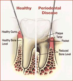 Diagram comparing healthy and diseased gums